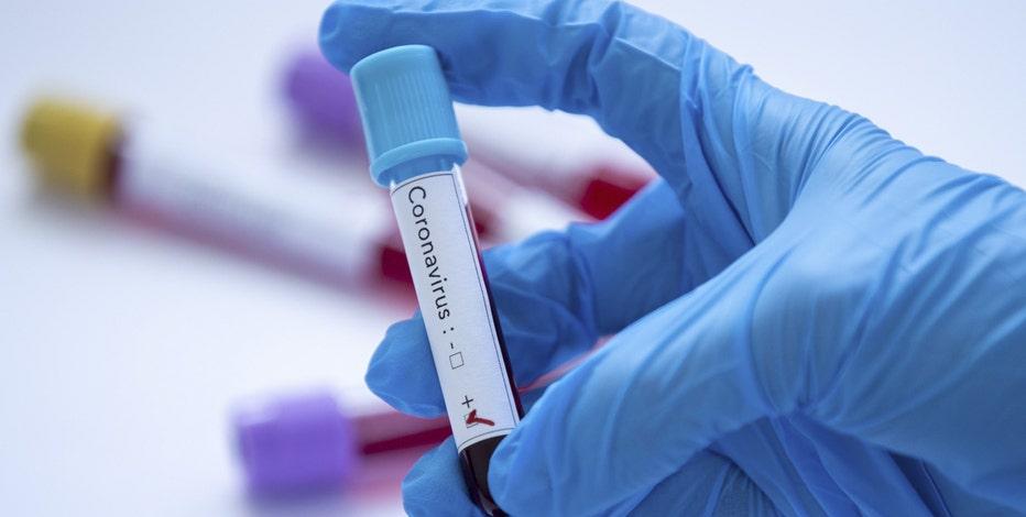 Coronavirus cases in Arizona surpass 100,000; 1,810 deaths reported