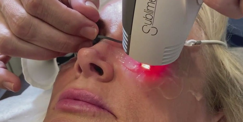 New treatment for dry eyes also zaps wrinkles