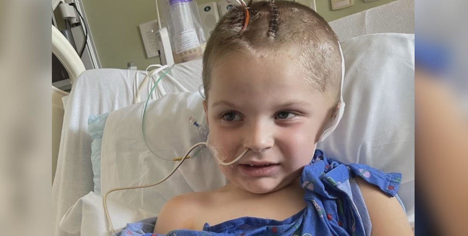 Motorcycle ride benefits boy injured in lawnmower accident