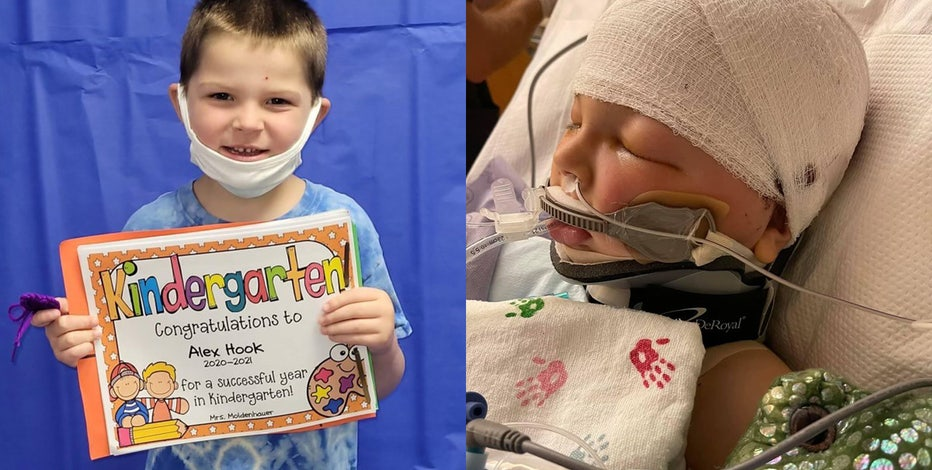 Boy struck by projectile on playground remains in coma