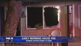Woman suffers burns during early morning house fire in Sun City