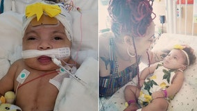 Miracle baby born with severe heart disease, taken off life support, about to celebrate first birthday