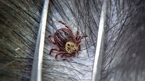 Tick bites leave 5-year-old girl hospitalized, unable to swallow or move amid 'tick paralysis'