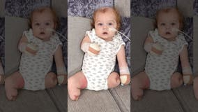 UK baby loses all 4 limbs following sepsis infection, mom claims one leg 'came off in her hand'