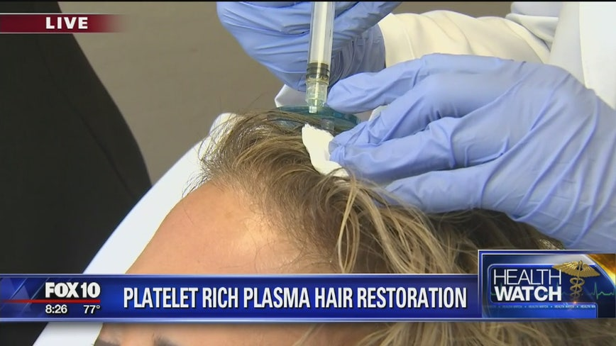 Platelet rich plasma hair restoration