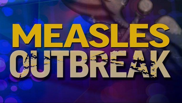 measles%20outbreak_1464909088351_1396954_ver1.0_1280_720.jpg
