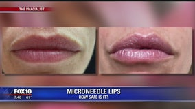 Microneedle procedure for lips