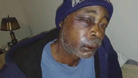 Vietnam veteran from Detroit beat up at bus station on Gratiot, left bloody in middle of road