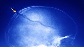 'Skull Breaker Challenge' going viral on TikTok is dangerous, doctors warn