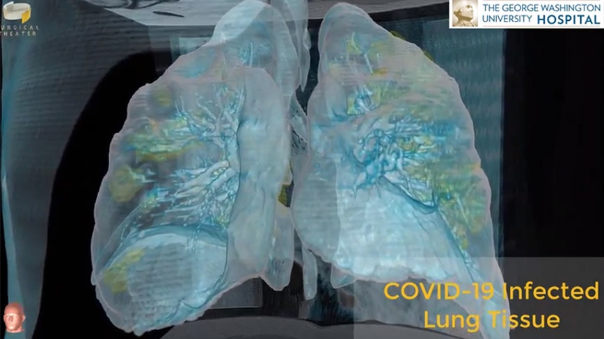 59-year-old COVID-19 patient who's lungs were modeled in 3D video dies