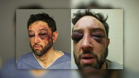 Bodycams captured man's arrest; now Denver PD faces excessive force lawsuit