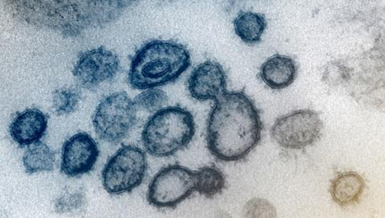 A transmission electron microscope image shows SARS-CoV-2, also known as the 2019 novel coronavirus, which causes CO