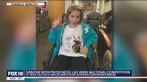 Scottsdale girl never gives up on dancing dream after leg amputation