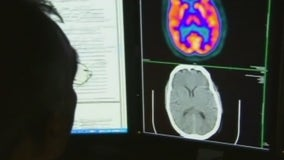 Study: 1 in 3 COVID-19 survivors develop mental health problems within 6 months
