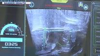 Mesa medical center offers new prostate enlargement procedure