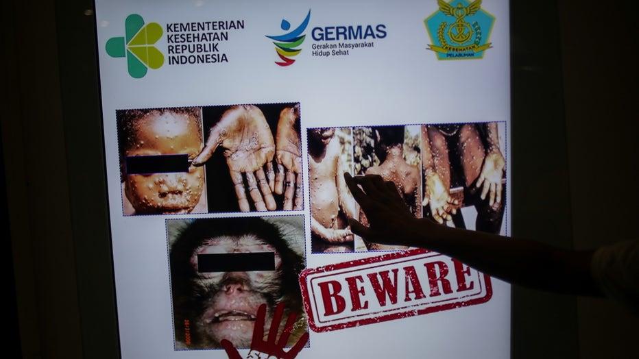 Monkeypox virus detection in Indonesia