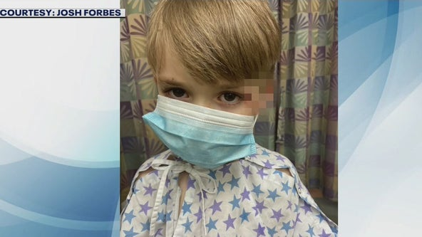 Boy with special needs hospitalized after being bitten by police dog, family says
