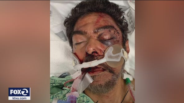 San Jose father ambushed, beaten after hit-and-run driver escapes