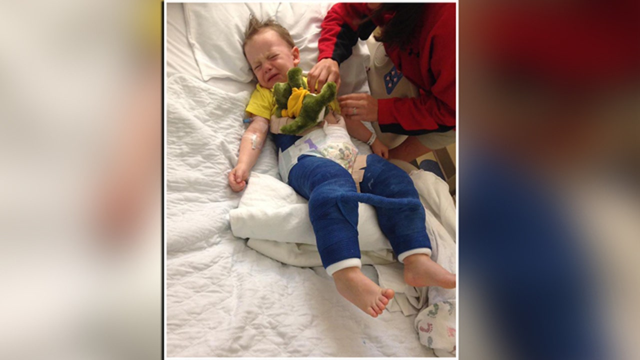 Tampa boy, 3, in body cast after jumping on trampoline ...