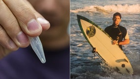 Shark tooth pulled from man's foot 25 years after bite