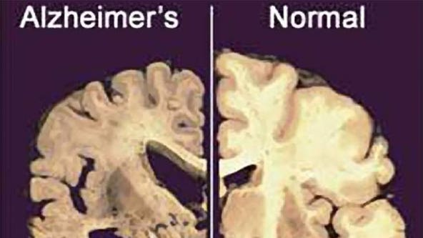 Florida commits $51M to Alzheimer's support