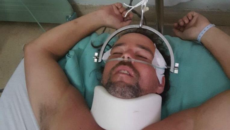 aedaa60d-man injured chasing monkey gofundme-404023