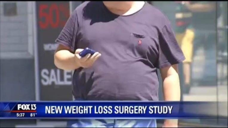 fbec0334-weight loss surgery_1444686339445.jpg