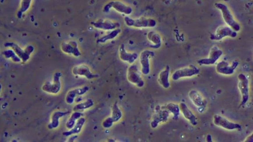 Rare brain-eating amoeba infection reported in Hillsborough County