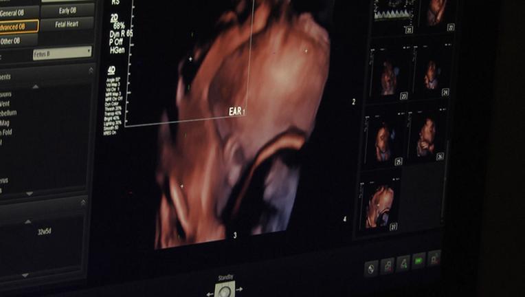 f0d24632-ultrasound_1447111590563-404959-404959.png