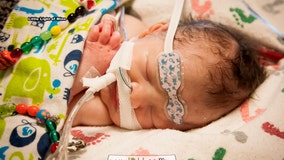 Photographer offers free sessions to families with a child fighting a life-threatening illness