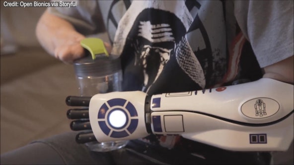 Quadruple amputee receives bionic arm