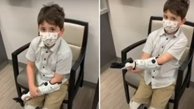 Illinois boy who lost parts from all 4 limbs gets 'Star Wars'-themed multi-grip bionic 'Hero Arm'