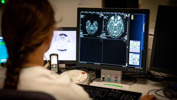 Scientists warn of potential brain damage linked to COVID-19