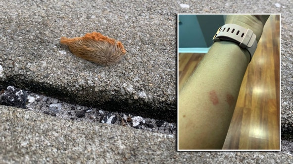 Puss caterpillar leaves its mark on Odessa woman after outdoor workout