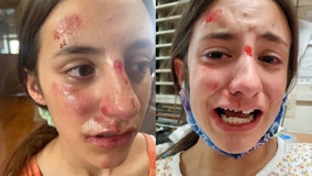 Illinois 7th grader says school bully attacked her during gym class