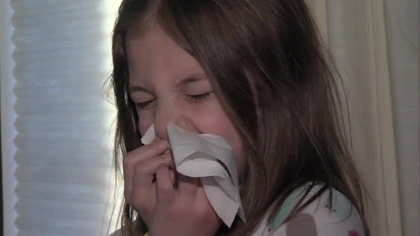 RSV cases surge in Bay Area, prompting doctors to warn parents about symptoms