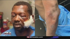 Man beaten by Baytown police officers because of his race, attorney says