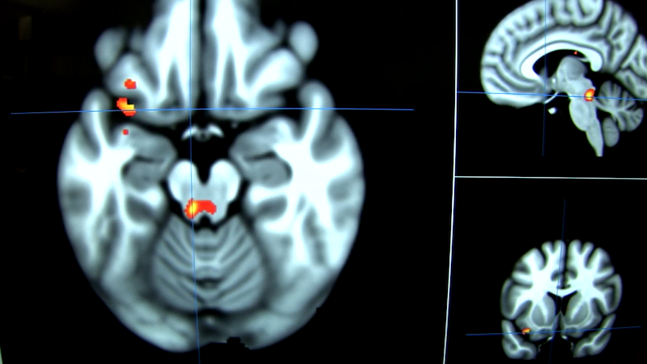 Brain scans may help depression patients find the right ...