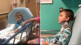 8-year-old Tomball ISD student treated for brain injury after being attacked, family says
