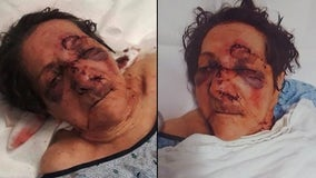 86-year-old woman assaulted at nursing home, son claims