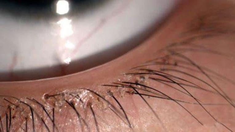 655424f7-660_eyelash_lice_CEN (1)_1441065863540-404023.jpg