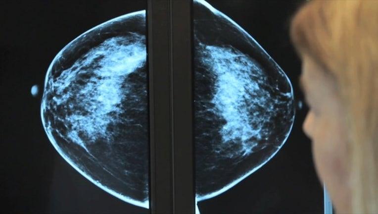 6d0d2d2d-BREAST CANCER BROLL _00.00.48.18_1539814291741.png-405538.jpg