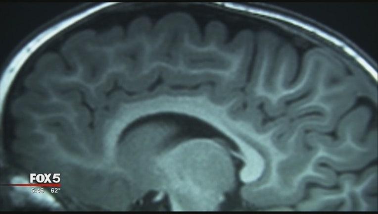 914a53be-Diet_Brain_2_20151223033129-404959