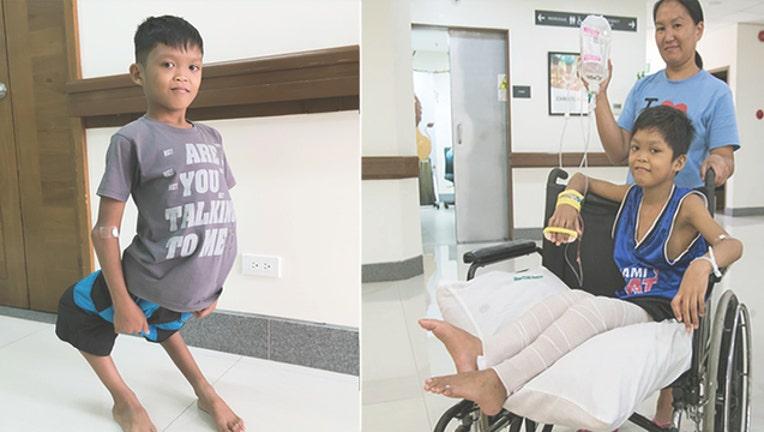 426dcef9-aldrin-leg-surgery_1532642625246-402429.jpg