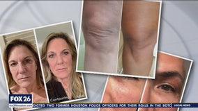 New procedure tightens skin non-invasively