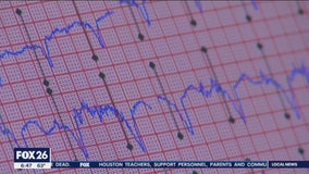 What you need to know about arrhythmia