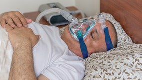 Reducing tongue fat via weight loss may be an effective sleep apnea treatment, study suggests