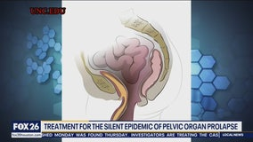 Treatment for the silent epidemic of pelvic organ prolapse