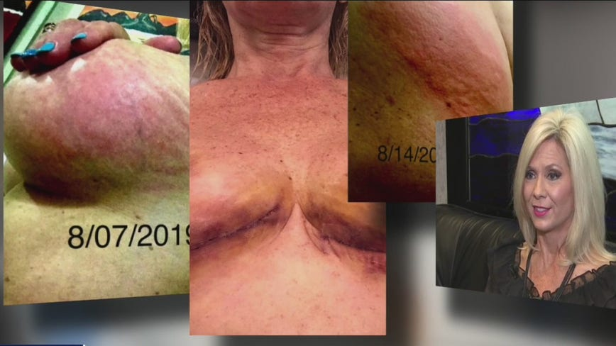 Houston woman says breast implants made her sick and she's not alone
