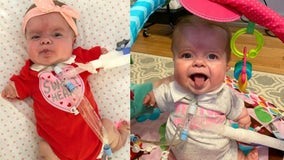 Georgia baby with rare form of dwarfism 'thriving' at home
